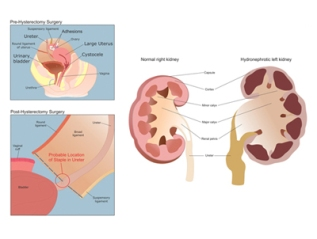 Hydronephrotic Kidney