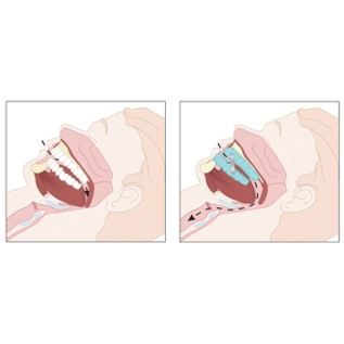 Oral Appliance for SleepApnea